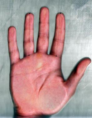 El ratio digital se obtiene al dividir la longitud del dedo índice entre la longitud del dedo anular de la misma mano. / UGR